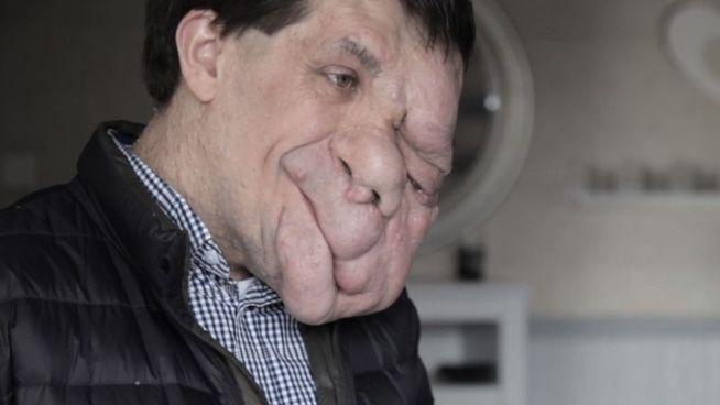Entstellt, aber selbstbewusst: Mann mit Gesichts-Tumor