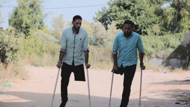 Bombenopfer: Mit einem Bein zu zweit durchs Leben
